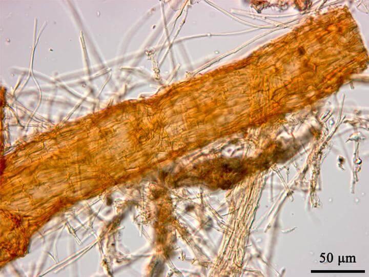 Photo of Pamukta Texas Kök Çürüklüğü (Phymatotrichopsis omnivora)