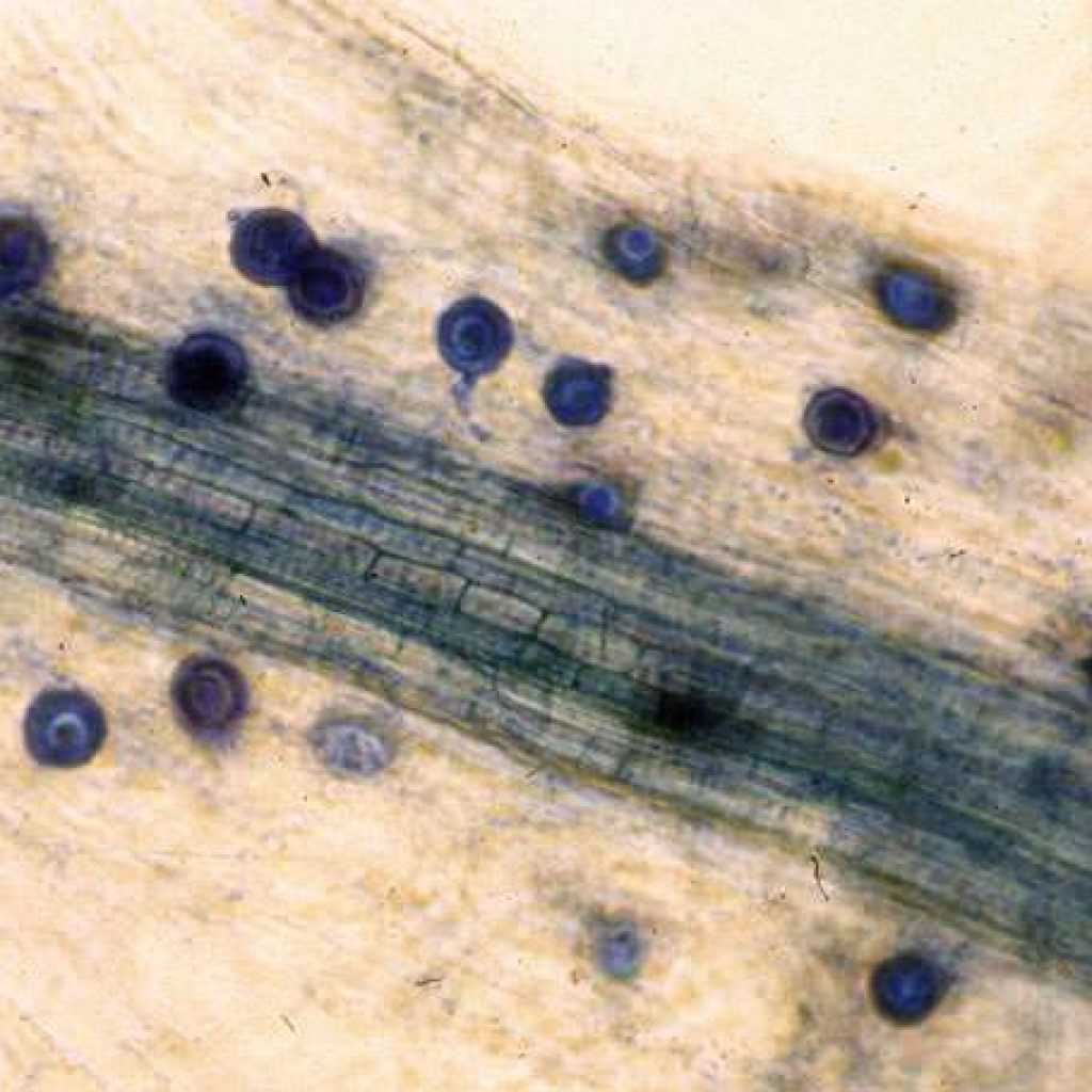 aphanomyces-oospores-1024x1024