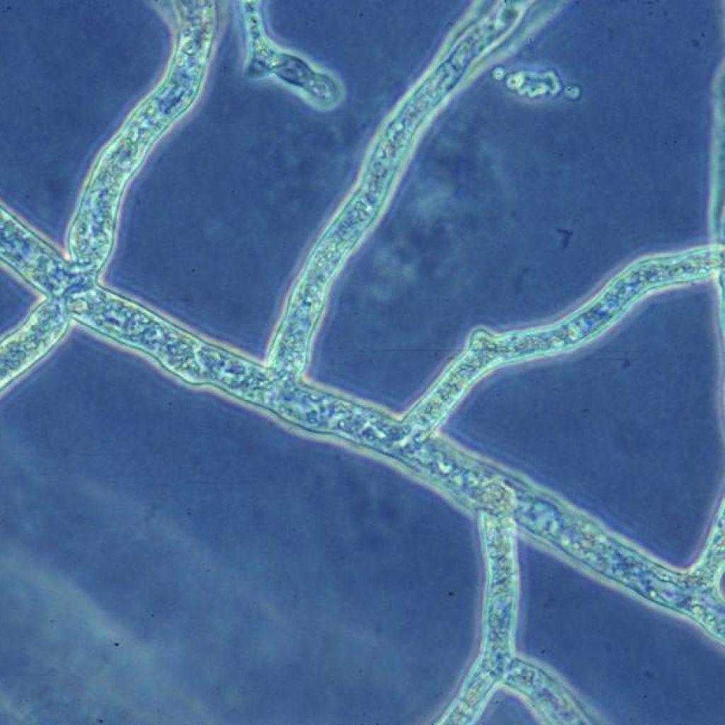 aphanomyces-siyonostik-hif-1024x1024